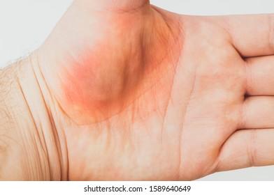 Eddie Hall Back Bruise, HD Png Download - kindpng
