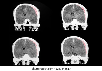 A traumatic brain injuried patient with large left subdural hematoma and moderate severe degree of brain edema.