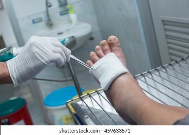 treatment of diabetic ulcer