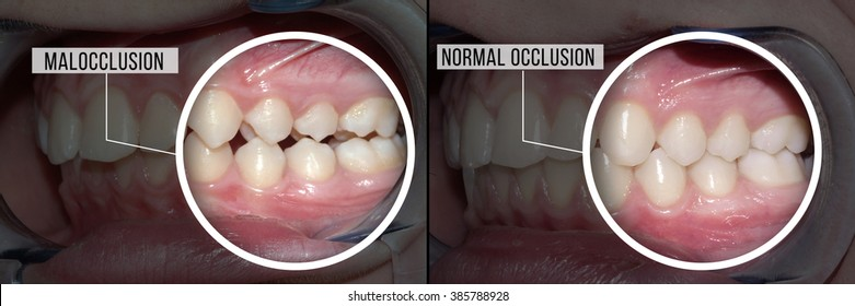 treatment malocclusion: before and after