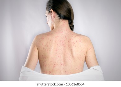 treatment Rubella viral infection concept. girls back skin rashes