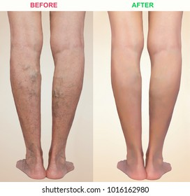Treatment of varicose before and after. Varicose veins on the senior female legs.