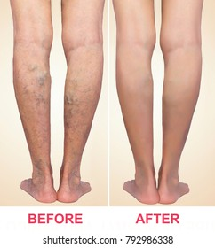 Treatment of varicose before and after. Varicose veins on the legs. Phlebology