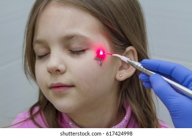 Treatment of a wound on the face with a laser.