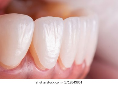 Try in procedure of dental ceramic veneers for lower teeth before installation. Porcelain laminated veneers for whiten and smile makeover.