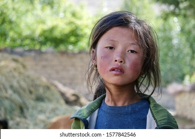 Tsarang, Upper Mustang / Nepal - August 23, 2014: Portrait of a pensive little girl of Tibetan ethnicity with a sunburn on her face.
