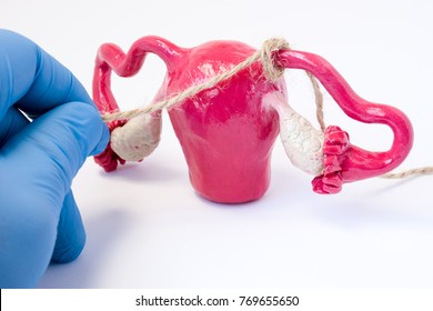Tubal ligation or surgical procedure tubectomy in operative gynecology concept photo. Doctor binds with rope fallopian tubes model of female genital organs uterus and ovaries. Surgical sterilization