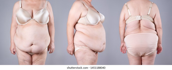 Tummy tuck, flabby skin on a fat belly and back, plastic surgery concept on gray background, collage of several photos from all sides