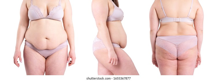 Tummy tuck, flabby skin on a fat belly and back, plastic surgery concept isolated on white background, collage of several photos from all sides