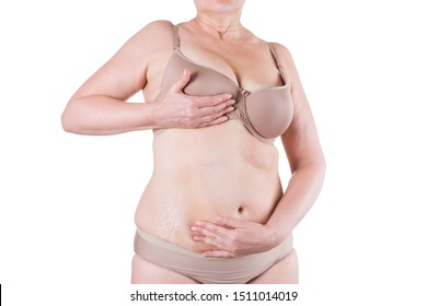 Tummy tuck, flabby skin with stretch marks on a fat belly, plastic surgery concept isolated on white background