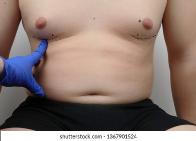 Tummy tuck, liposuction, breast surgery. A plastic surgeon prepares a man for plastic surgery.