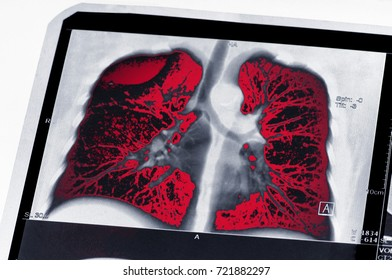 Tumor. Lung cancer. The MRI highlighted in red tumor. The effects of Smoking