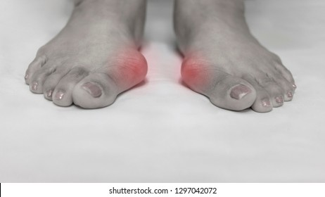 Twe tone color picture of both feet in standing position. Hallux valgus deformity with pronation of big toe and medial bunion made patient pain on shoe wear. Surgery will perform to correction.