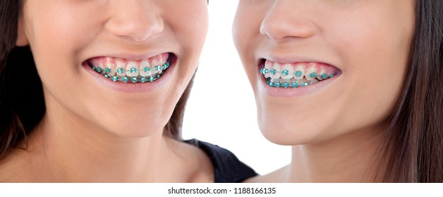 Twins sisters with brackets isolated on a white backgroung