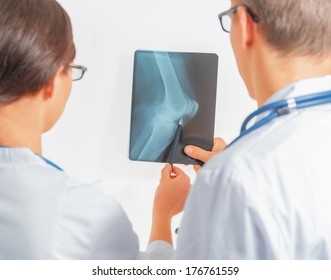 Two doctors look at x-ray picture of the knee joint, rear view. Point of view shot