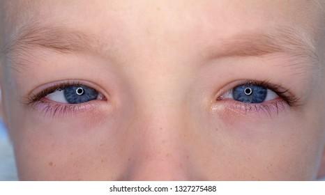Two eyes of a teenager, macro closeup