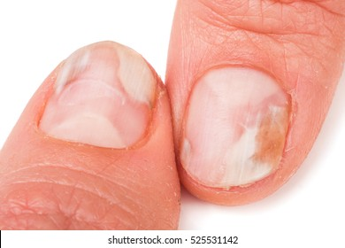 two fingers of the hand with a fungus on the nails isolated white background