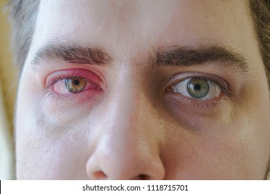 Two red eyes of man is watching to the camera. One right eye eyelid abscess