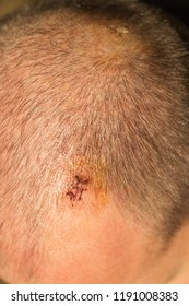 Two scars after removing fat tissue from head. Portrait view.