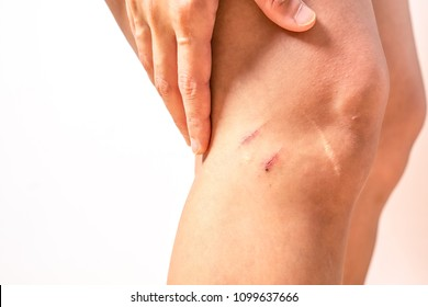 two scratch wound on female knee with big scar closeup, healthcare and medicine concept