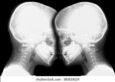 two skeleton face to face