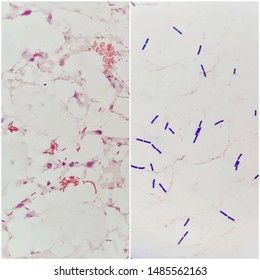 Two smear patterns of human blood cultured Gram's stained with gram positive bacilli bacteria on the left and gram negative bacilli bacteria on the right, under 100X light microscope(Selective focus).