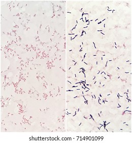 Two smear patterns of human blood cultured Gram's stained with gram negative bacilli bacteria on the left and gram positive bacilli bacteria on the right, under 100X light microscope(Selective focus).