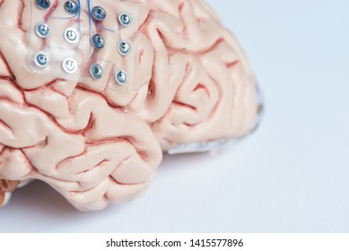 Two of subdural grid electrodes for brain waves recording or electroencephalography on the artificial brain model cortex