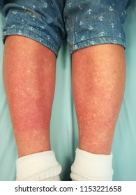 A typical convalescent or recovery rashes on both lower legs with generalized petechial hemorrhage as red on normal skin as white circular spots in dengue fever infection patient on day seven dengue