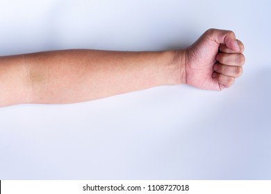 Typical rash in the forearm due to viral (dengue) rash