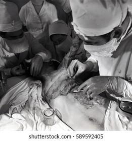 Ufa, USSR, September 13, 1971: surgeons performing a skin graft operation in the city hospital of skin transplantations