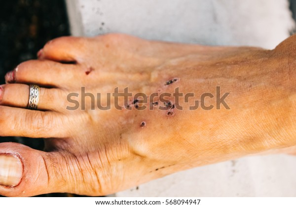 Ugly foot fungus and scabs on someone's feet and toes