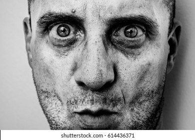 Ugly man portrait with unshaven face, dirty skin, big nose with black spots, terrific big eyes, murderer face
