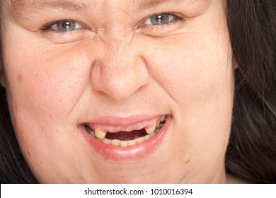 Ugly woman with missing teeth. Close up portrait.
