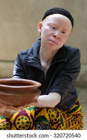 UKEREWE - TANZANIA - JULY 2, 2015: Unidentified albino woman on July 2, 2015 in Ukerewe, Tanzania. Many traditional healers have been arrested recently in Tanzania because of albino murders