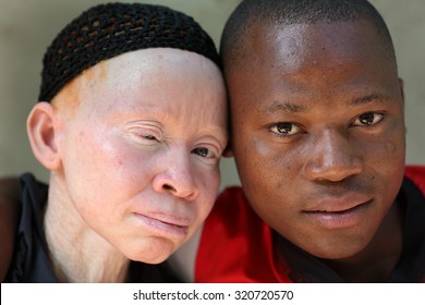 UKEREWE - TANZANIA - JULY 2, 2015: Unidentified albino mother and son on July 2, 2015 in Ukerewe, Tanzania. Many traditional healers have been arrested recently in Tanzania because of albino murders