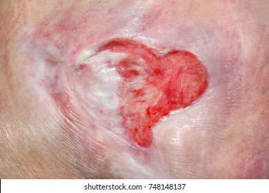 Pressure Ulcer Images, Stock Photos & Vectors | Shutterstock
