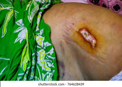 ulcer on the buttocks - bedsore. Pressure Ulcers. Overgrown Wound with new skin