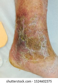 ulcer vein disease, suffering from nicotine consumption