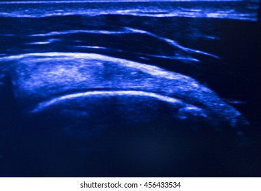Ultrasound assisted ecography on screen showing intratissue percutaneous electrolysis dry needling physical therapy rehabilitation  treatment in hospital medical center IPE physiotherapy clinic.