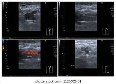Ultrasound color doppler left leg:Hyperechoic thrombus with dilatation of veins, at Lt.superficial femoral v. and popliteal v. Impression: Acute DVT of Lt leg.
