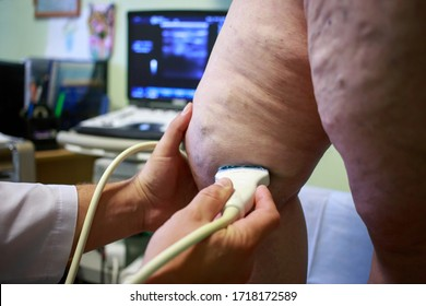 The ultrasound examination of varicose veins a close up