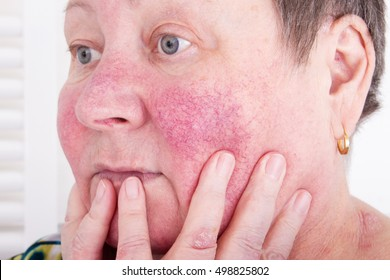 Unhappy elderly woman with skin condition rosacea characterized by facial redness, small and superficial dilated blood vessels, no make-up