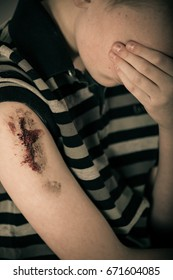 Unhappy male child with bloody bare arm wearing striped shirt with hand clasped over eyes