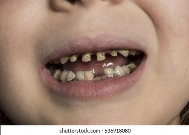 unhealthy baby teeth close-up