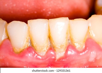 Unhealthy denture, tartar on frontal teeth, plaque and gingivitis