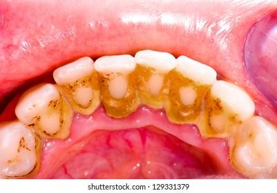 Unhealthy denture, tartar on frontal teeth