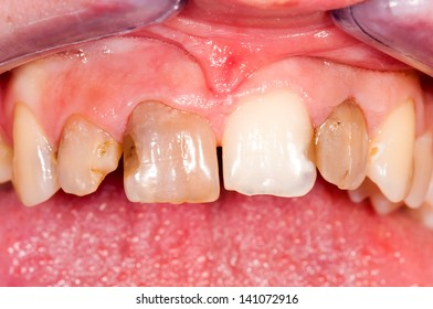 Unhealthy frontal teeth before treatment