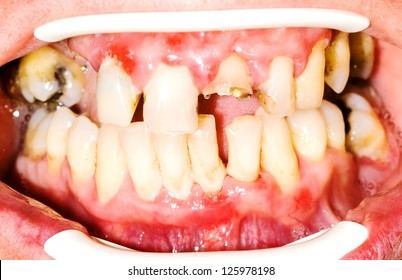 Unhealthy teeth before the oral rehabilitation