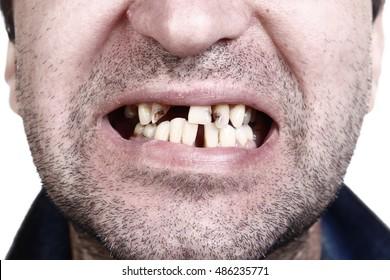 Unhealthy teeth, caries, missed teeth